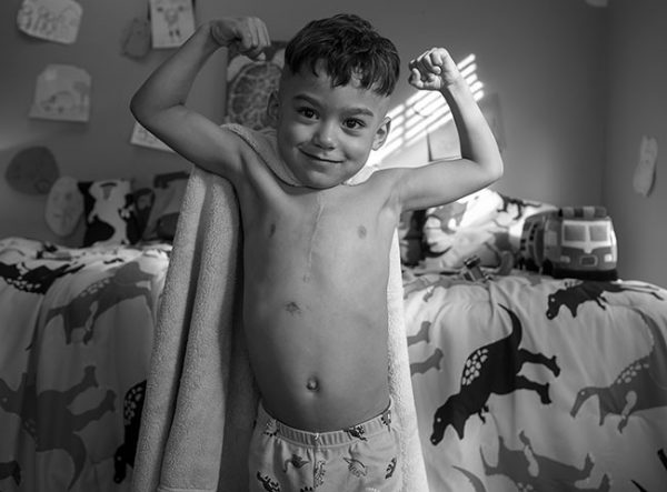 JuJu Rivera, a five-year-old boy from Lebanon who received three heart surgeries at Penn State Children's Hospital, makes muscles with both arms as he stands in his bedroom. He has a vertical scar on his chest and is wearing a towel on his back like a superhero cape and pajama pants. Behind him, his bed is covered with a bedspread decorated with dinosaurs.